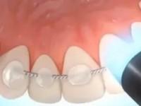 Что такое шинирование зубов?