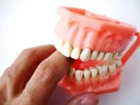 Почем дешевые зубы?
