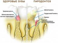Если у вас подвижный зуб…