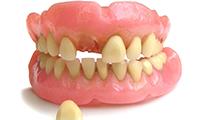 Потерялись зубы