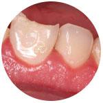 Откололся кусок зуба