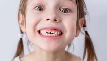 Подрезание уздечки губы и языка