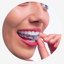 Каппы для зубов