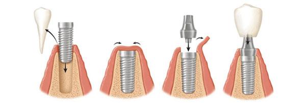 имплантация зуба в день удаления