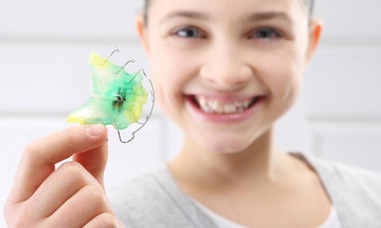 Ортодонтическое лечение пластинками