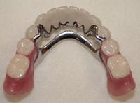 Если у вас совсем нет зубов, но вы не можете носить протезы…