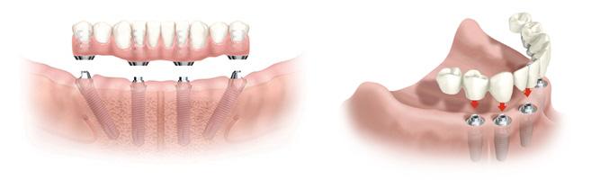Стоматология во Всеволожске «Медотель» предлагает протезирование зубов несъемными протезами