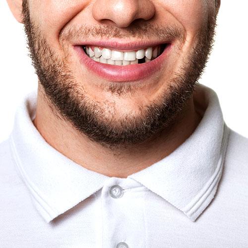 Удалить зуб во Всеволожске