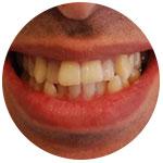 Передние зубы имеют неровности
