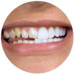 Пожелтели передние зубы