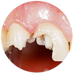 Реставрация зубов в Медотель