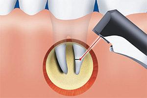 Гемисекция корня зуба