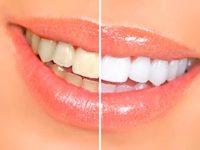 Врачи стоматологии во Всеволожске рассказывают про отбеливание зубов с помощью перекиси